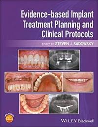 تاب الکترونیکی برنامه ریزی ایمپلنت مبتنی بر شواهد Evidence-based Implant Treatment Planning and Clinical Protocols