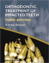 کتاب الکترونیکی ارتودنسی دندان نهفته بکرOrthodontic Treatment of Impacted Teeth 3 ED