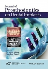 کتاب الکترونیکی ژورنال پروتزهای دندانی در ایمپلنت های دندانی